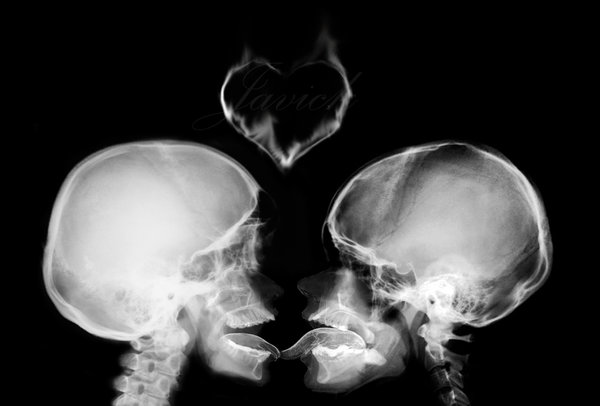 x_ray_kiss_by_javick-d34gn6s